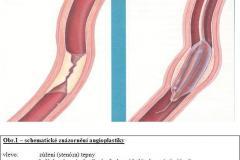 Angioplastika