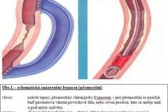Bypass a trombektomie